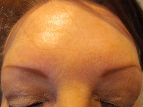 Forehead After Treatment
