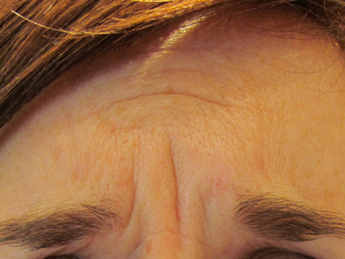 Glabella Before Treatment