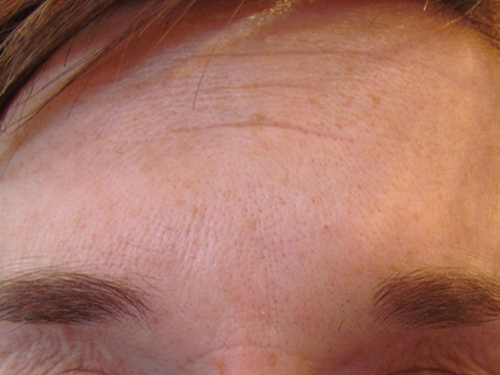 Glabella After Treatment