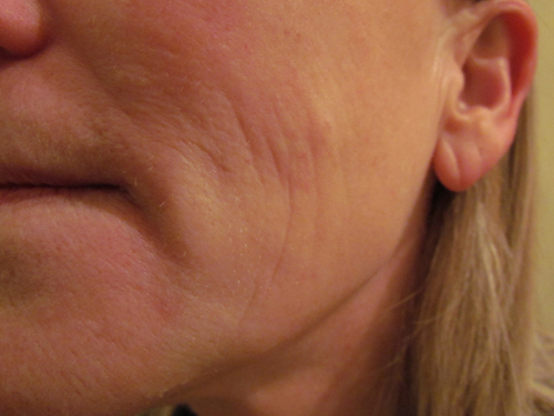 Cheek Lines Before Treatment