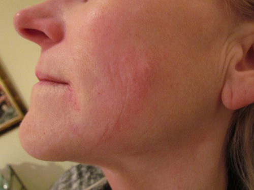 Cheek Lines After Treatment