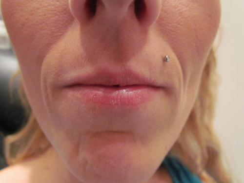Lip Augmentation Before Treatment