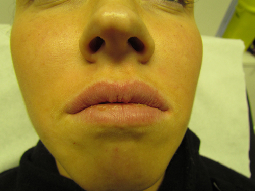 Lip Augmentation After Treatment